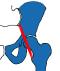 Psoas impingement kan voorkomen bij gewone heupen, maar ook na een heupprothese.