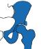 Bij subspine impingement is het bot waarop een spier aanhecht te groot en botst deze bij buigen tegen de heup.