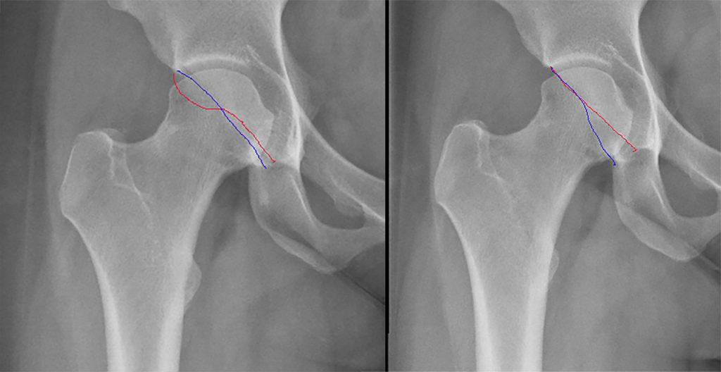 Voorbeeld van een pincer impingement, het cross-over sign (achterwand en voorwand) is aangegeven. Links voor en rechts na heuparthroscopie.